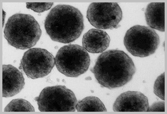 Spheroid formation of primary human hepatocytes