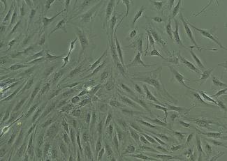 brightfield image of human hepatic stellate cells, passage zero, at 11 days post plating, 100X