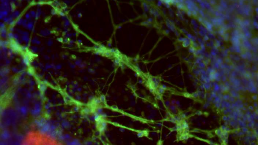 iPSC-derived neural cells on HuGentraTM stained with beta-tubulin and A2B5, a stem cell marker