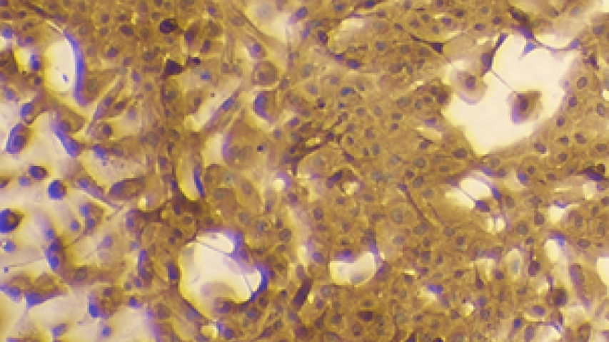 Human alveolar type II epithelial cells at passage 1, DAB stained for ACE2